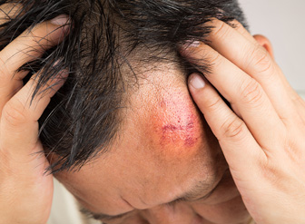 Brain Injury & Concussion Treatment North Royalton OH - Laser Therapy Cleveland™ - head